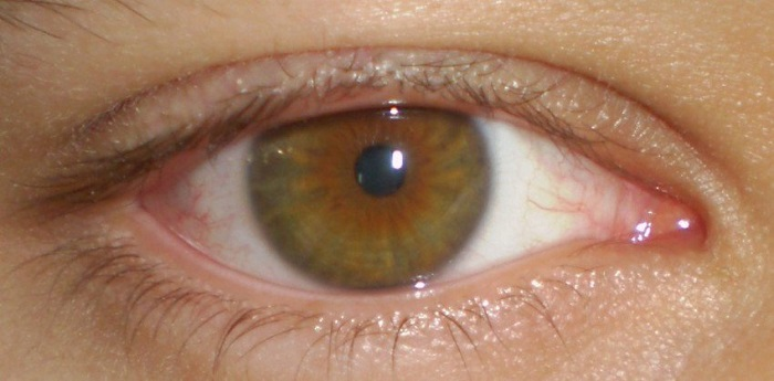 Photo Credit: http://www.buzzit.club/13-amazing-facts-about-eye-colors-you-probably-didnt-know