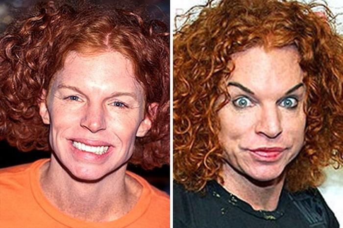 Bad plastic surgery celebrity male